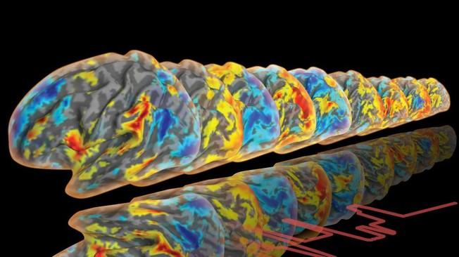 Durch die Analyse des Blutflusses im Gehirn lässt sich beobachten, welche Gehirnregionen wann aktiv sind und wie sie sich austauschen.