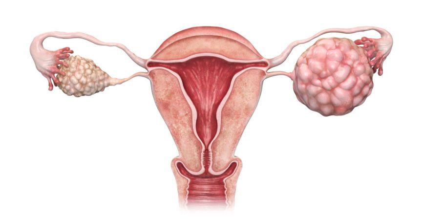 3d gerenderte Illustration des Eierstockkrebses.