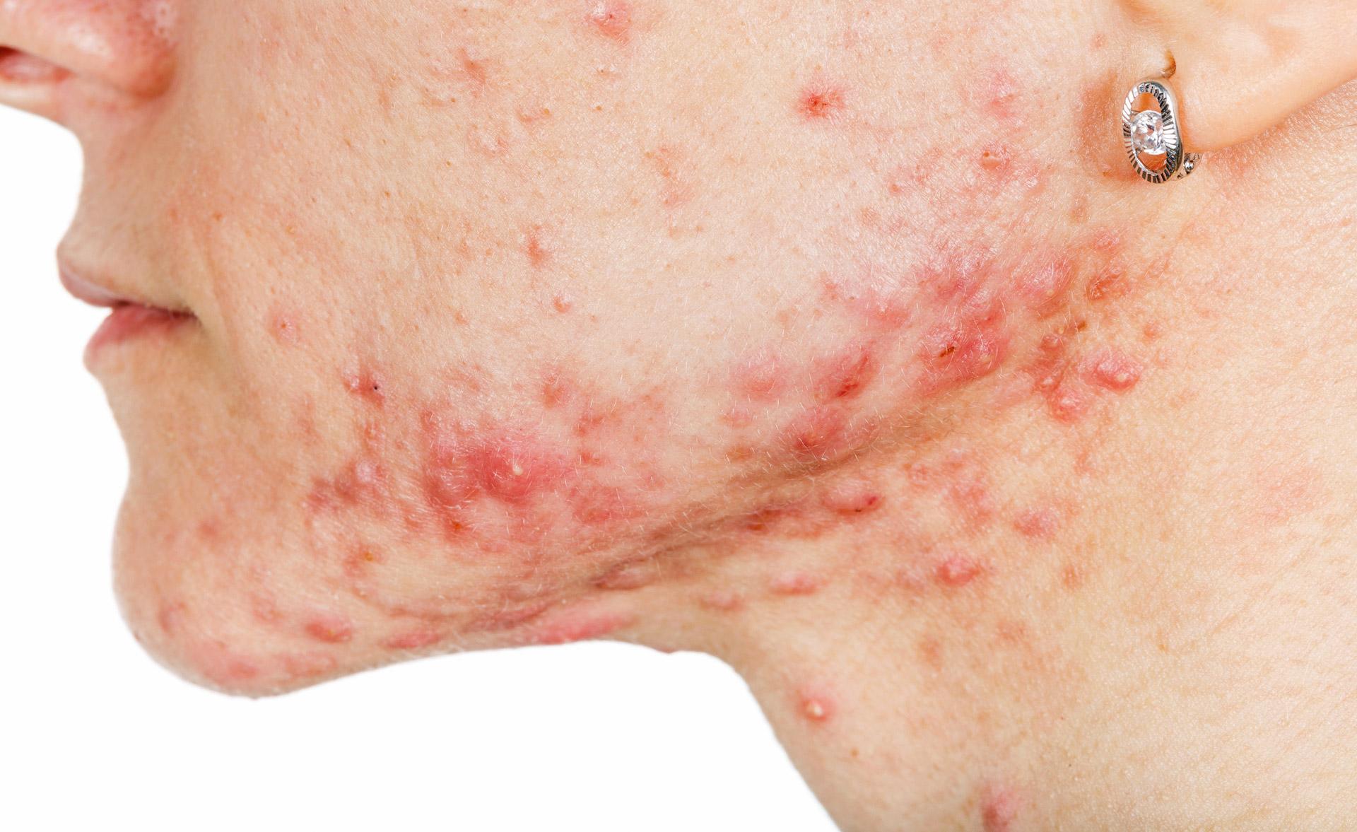 Coronavirus Symptome Haut
