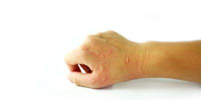 Dermatitis Problem von Hautausschlag, Allergie Hautausschlag und Gesundheitsproblem auf Arm weißen Hintergrund