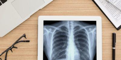 Gesundheitswesen und medizinisches Konzept. Lungenröntgenbild des Scan-Brustpatienten auf digitalem Tablettbildschirm. Draufsicht.