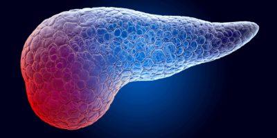 Schmerz im Pankreaskonzept. Geisterlichteffekt, Röntgenhologramm. 3D-Rendering auf dunkelblauem Hintergrund