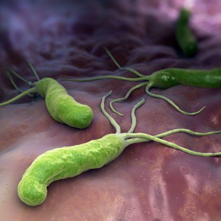 HELICOBACTER PYLORI ist ein gramnegatives, mikroaerophiles Bakterium im Magen