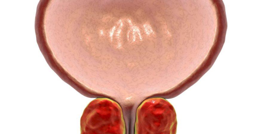 Gutartige Prostatahyperplasie, 3D-Darstellung mit vergrößerter Prostata