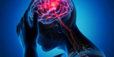 Medizinische Darstellung eines Gehirns mit Schlaganfallsymptomen