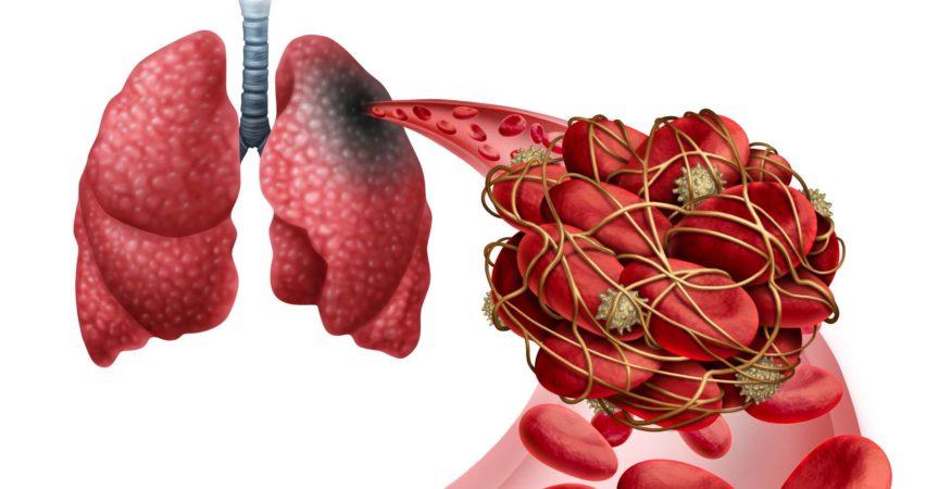 Lungenembolie mit einem Blutgerinnsel als Krankheit mit einer Verstopfung einer Arterie in der Lunge mit 3D-Illustrationselementen.