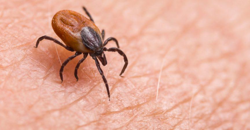 Infizierte weibliche Hirsche ticken auf haariger menschlicher Haut. Ixodes ricinus. Gefährliches Milbendetail. Acarus. Infektiöse Borreliose