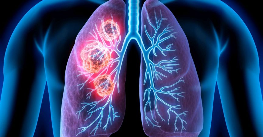 Medizinische Illustration von Lungenkrebs - Krebsbereich in der Lunge
