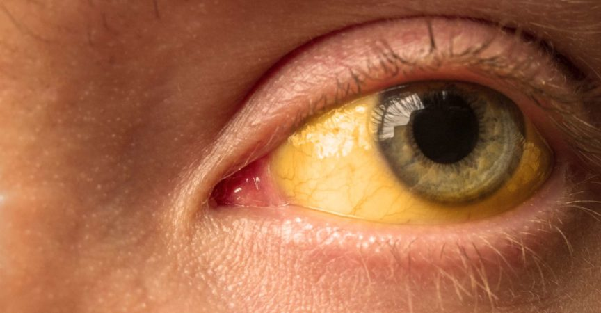 Gelbfärbung der Sklera des Auges bei Erkrankungen der Leber, Leberzirrhose, Hepatitis, Bilirubin