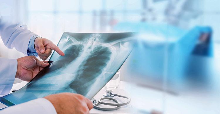 Röntgenbild von der Lunge