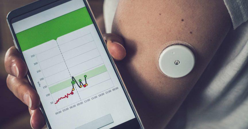 Frau, die Glukosespiegel mit einem entfernten Sensor und Mobiltelefon prüft, Sensor, der Glukosespiegel ohne Blut überprüft. Diabetes-Behandlung.