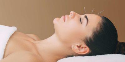 schöne Frau hat Kopfschmerzen. Akupunkturbehandlung bei Migräne. Nadeln in der Stirn einer Frau Nahaufnahme auf einem braunen Hintergrund