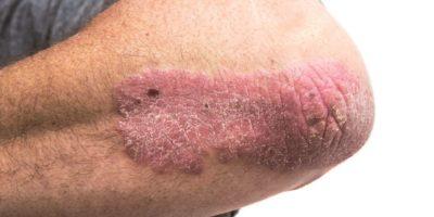Psoriasis am Ellbogen eines Mannes mittleren Alters. Nicht isoliert.