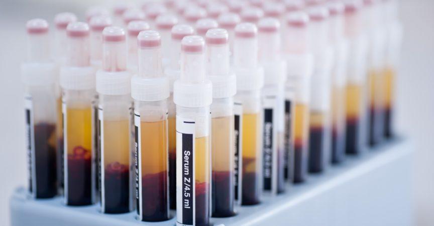 """Medizin, Blutproben im Labor"""