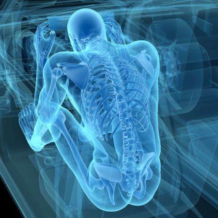 Röntgenaufnahme eines Mannes bei einem Autounfall