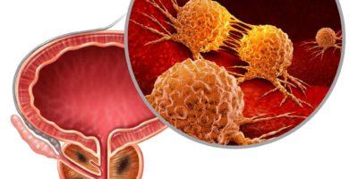 Krebs der Prostata