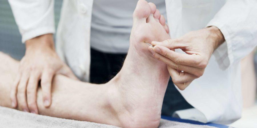 Arzt testet die Empfindlichkeit des Fußes