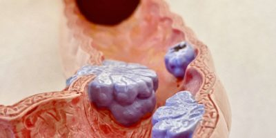 Anatomisches Modell von Darmkrebs