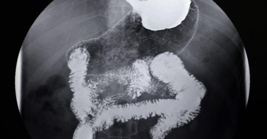 Röntgen-Magen-Darm-Angiographie-Bild des menschlichen Magens,