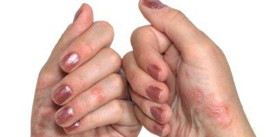 Psoriasis, dermatologische Erkrankungen.