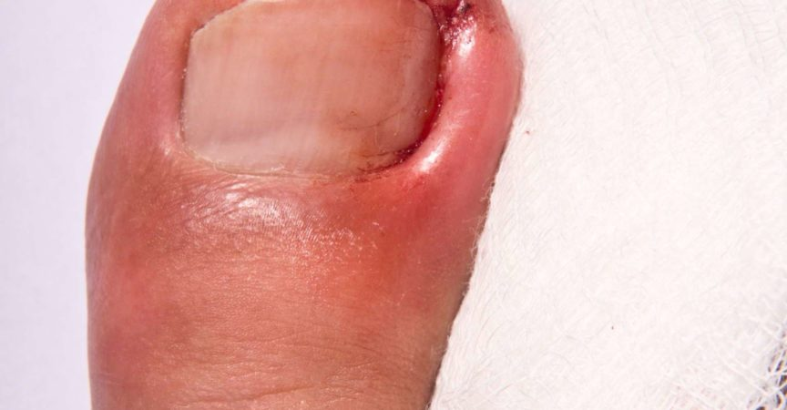 Geschwollener eingewachsener Zehennagel mit Infektion