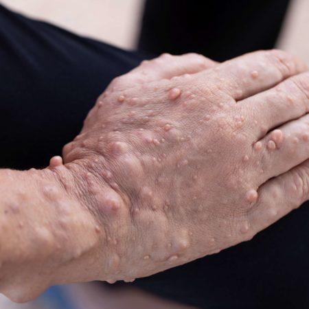 Neurofibromatose (NF) ist eine Erkrankung, bei der Tumore wachsen. Zu den Symptomen gehören hellbraune Flecken auf der Haut.