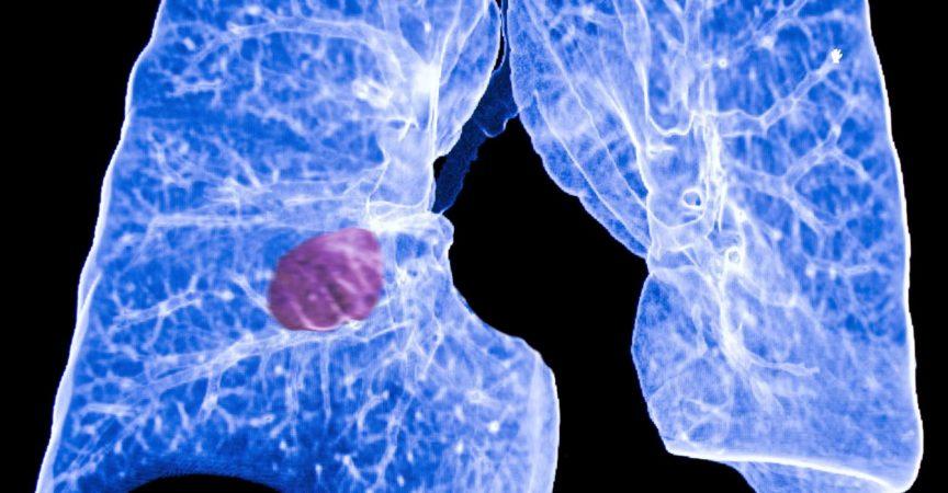 Lungenkrebs, CT
