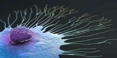Wissenschaftliche Illustration einer wandernden Brustkrebszelle - 3d Illustration