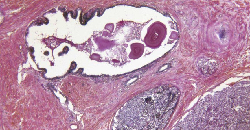 Prostata Adenocarcinoma