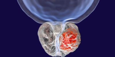 Prostatakrebs, 3D-Darstellung, die das Vorhandensein eines Tumors in der Prostata zeigt, der die Harnröhre komprimiert
