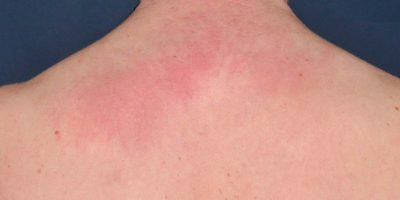 Nacken. Ebenfalls typisch für die Dermatomyositis: die Erytheme an Dekolleté und Nacken