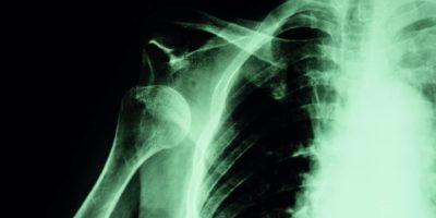 Röntgen der vorderen Schulterluxation