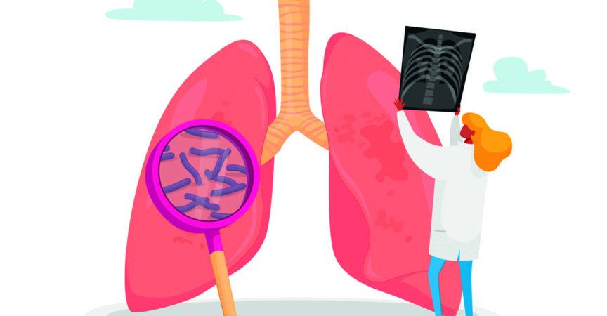 Lungenspezialist, professioneller Arzt Charakter mit Röntgenbild der Lunge Lernende Patientenfluorographie mit Tuberkulose oder Lungenentzündung, Arbeit des medizinischen Personals. Karikatur-Vektor-Illustration