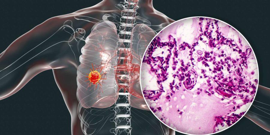 Lungenkrebs, 3D-Illustration und Foto unter dem Mikroskop. Lichtmikroskopische Aufnahme eines Lungenadenokarzinoms