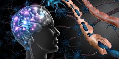 Multiple Sklerose Nervenstörung