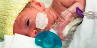 Baby 33 Wochen und 5 Tage alt mit einer Ernährungssonde durch Nase und Augen offen.
