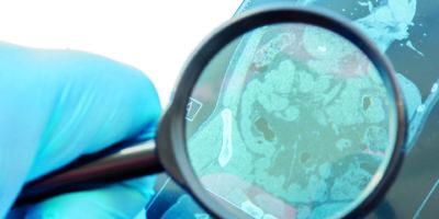 Der Arzt untersucht die MRT-Momentaufnahme von Bauchorganen, Dick- und Dünndarm. Eine sorgfältige Diagnose ist selten und tritt häufig bei Darmerkrankungen wie dem Reizdarmsyndrom und Morbus Crohn auf
