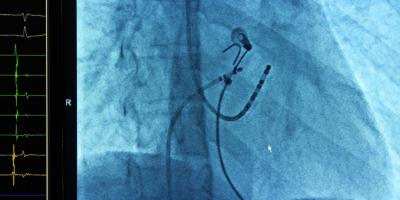 Röntgenaufnahme mit korrekter Platzierung der Katheterablation bei Vorhofflimmern