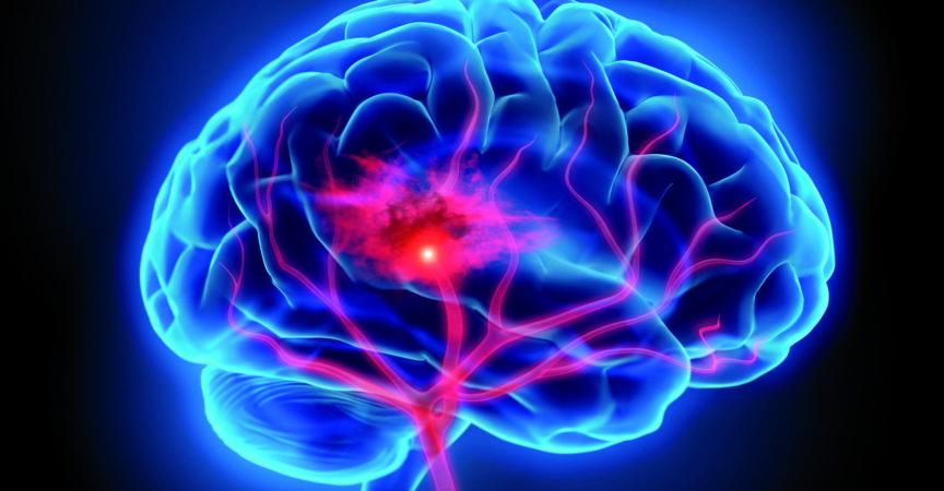Illustration des menschlichen Gehirns mit Schlaganfallsymptom