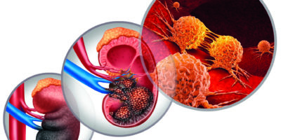 Kidney Cancer Disease
