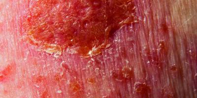 Basalzellkarzinom-Krebsbehandlung mit topischer Medizin
