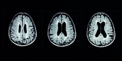 MRT-Untersuchung des menschlichen Gehirns mit Multiple-Sklerose-Plaques