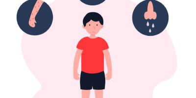 Flache Vektorillustration des Kinderallergiekonzepts. Stehender Junge mit Allergiesymptomen.