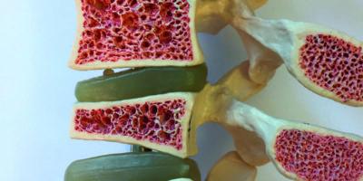 Anatomisches Modell des Querschnitts der Wirbelsäule und der Wirbelkörper mit verschiedenen Stadien der Osteoporose