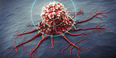 3D-Rendering einer Krebszelle - medizinische Illustration