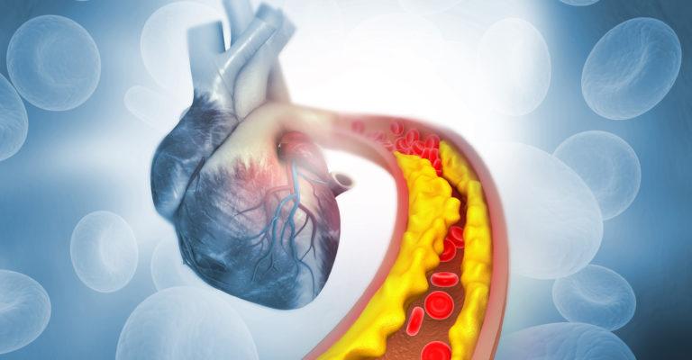 Cholesterinplaque in der Arterie mit menschlicher Herzanatomie. 3D-Illustration