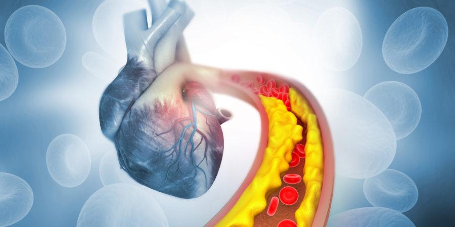 Cholesterin-Plaque in der Arterie mit Anatomie des menschlichen Herzens. 3D-Darstellung
