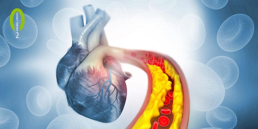 Arterienverkalkung