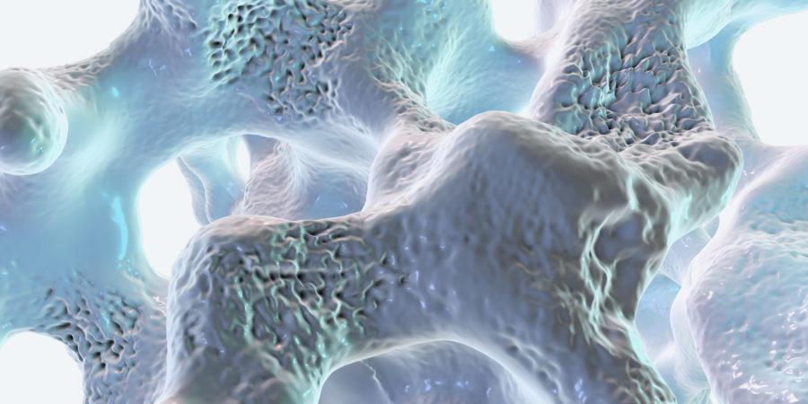 Von Osteoporose betroffenes schwammiges Knochengewebe, 3D-Darstellung