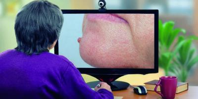 Telemedizin-Dermatologe untersucht Maulwurf am Kinn